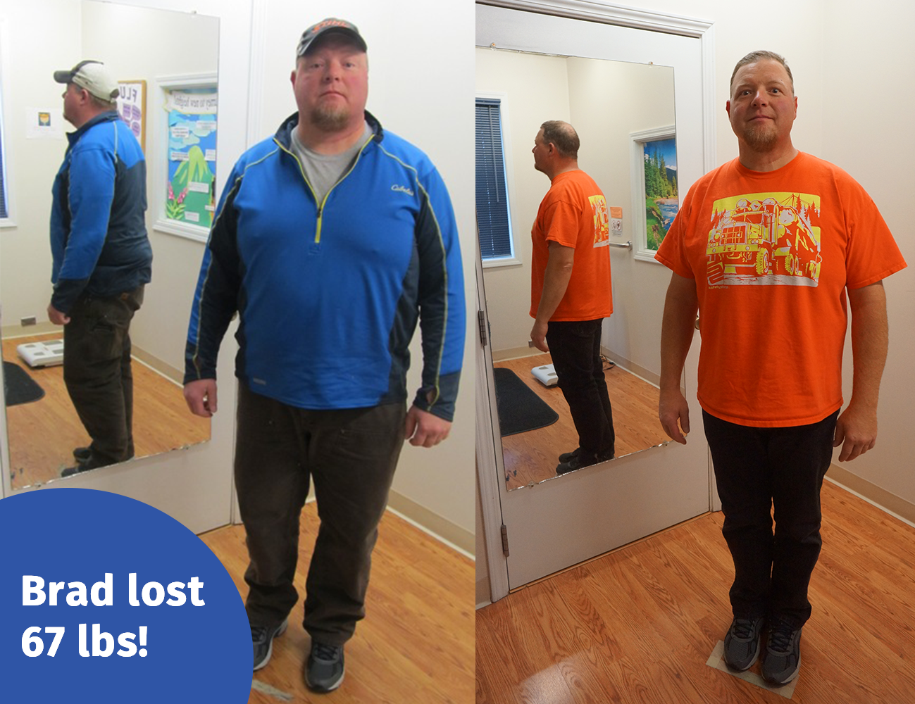 real weight loss results alaska premier health